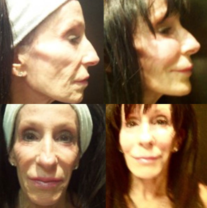 Cheek filler before and after